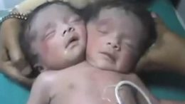 Woman Gives Birth to a Two Headed Baby in Pakistan